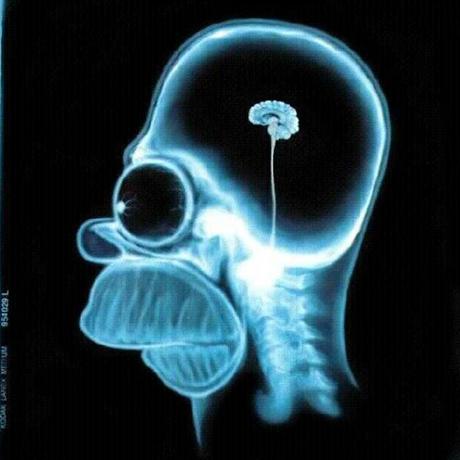 Fotos mas destacadas de Homer Simpson, radiografía de cerrebro